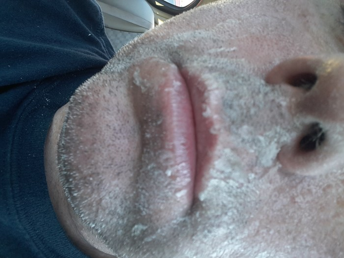 Dried on facial cum