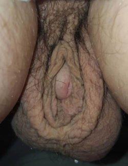 Thought I was looking at one of the world's most disgusting vaginas