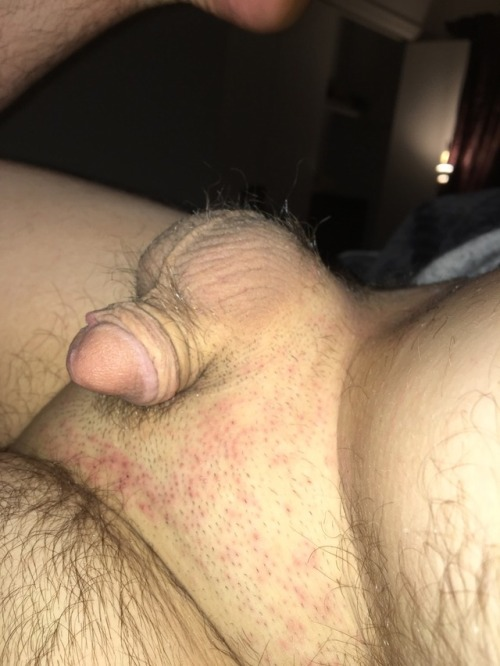 Pimple on cock