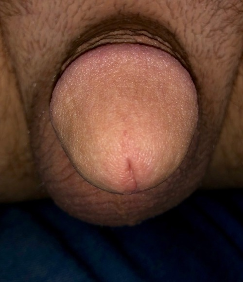 When your dick looks more like a button than a penis…