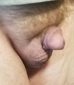 My micro penis