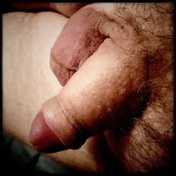 Small erection