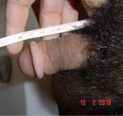 Small circumcised penis