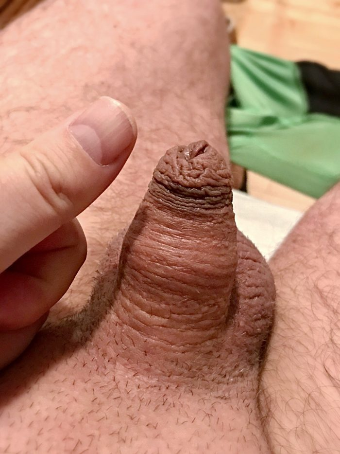 Which is the thumb?