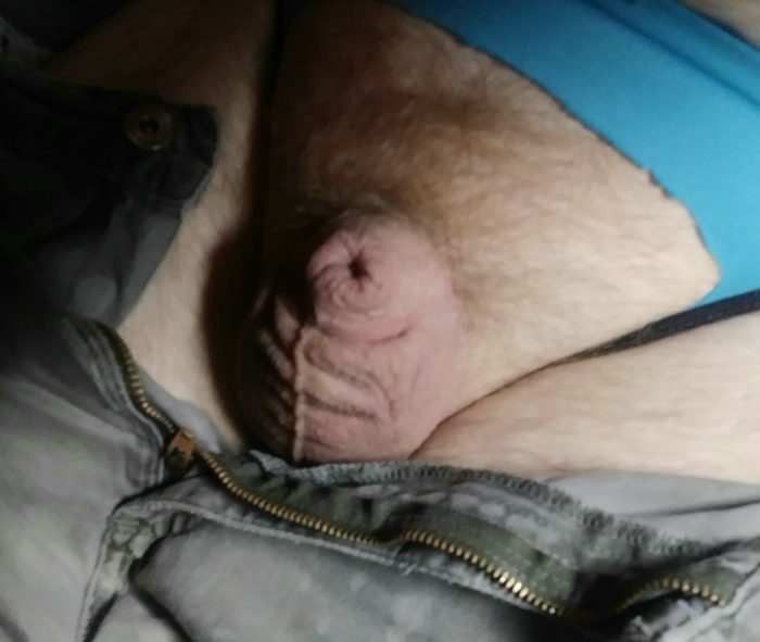 my chemically limp, shriveled and inverted cuck-clit
