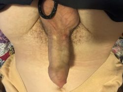 Little pimple dick