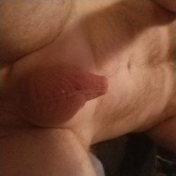 Micro penis