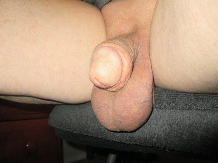 my little penis