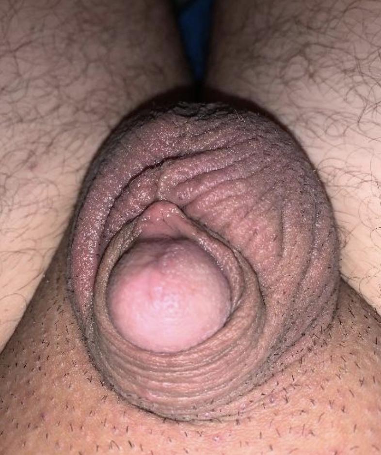 My tiny dick